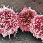 Американские врачи впервые вылечили рак на последней стадии!